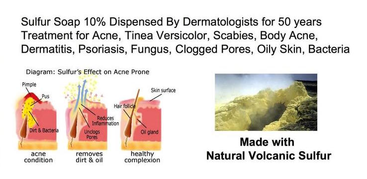 natural volcanic sulfur for acne treatment