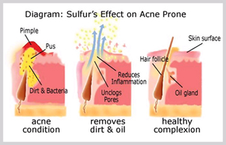 +sulfur for treating +acne
